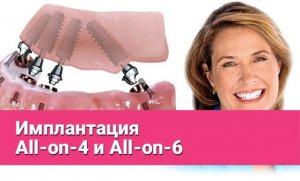 Имплантация All-on-4 и All-on-6
