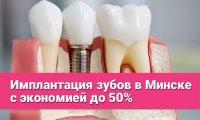 Экономия до 50% на имплантацию зубов в Минске