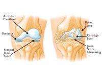 Артроз коленного сустава лечение в Беларуси