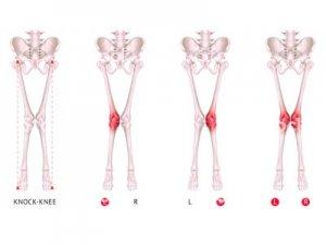 Вальгусная деформация коленей